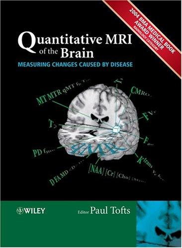 Download Quantitative MRI of the Brain