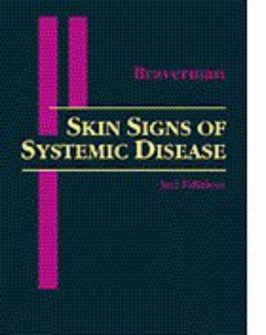 Skin signs of systemic disease
